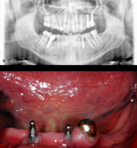 implant1-before